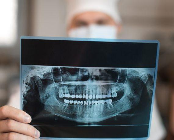 donde reciclar radiografías